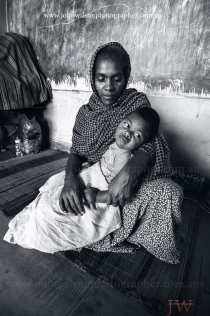 skin injuries on feet of tsunami survivor 2004 Sri lanka by John Wilson Australia photojournalist